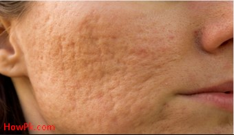 Get rid of genital herpes scars reduce and fade acne scars naturally ccuart Image collections